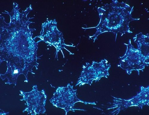 How Your Immune System Can Be Stimulated To Fight Cancer!